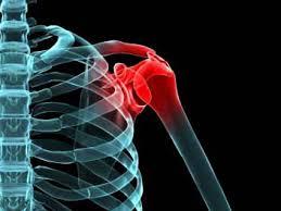 les rhumatismes sont des atteintes des articulations.